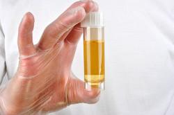 Анализ мочи для диагностики заболевания мочевого пузыря