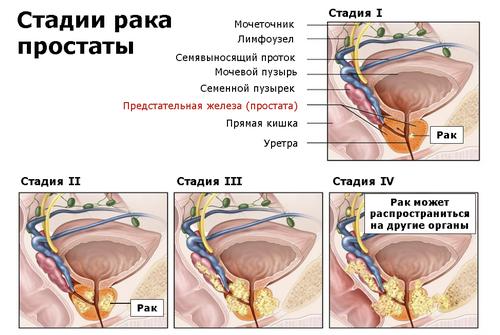Общеклиническое исследование секрета предстательной железы норма