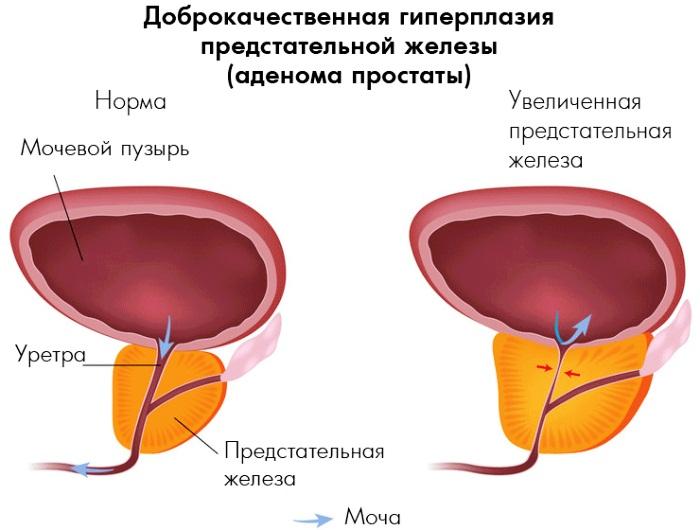 Нормы показателей объема предстательной железы