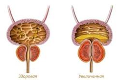 Увеличенная простата - признак заболеваний