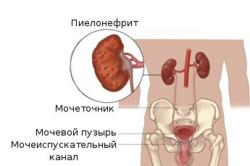 Пиелонефрит - причина цистита