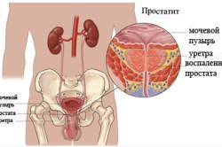 Схема простатита