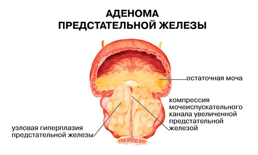 Простатит симптомы синдром хронической тазовой боли