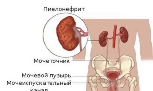 Пиелонефрит простата