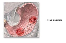 Язва желудка - причина отказа от употребления клюквы