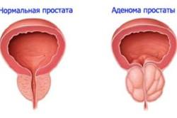Болезни аденома простаты операции